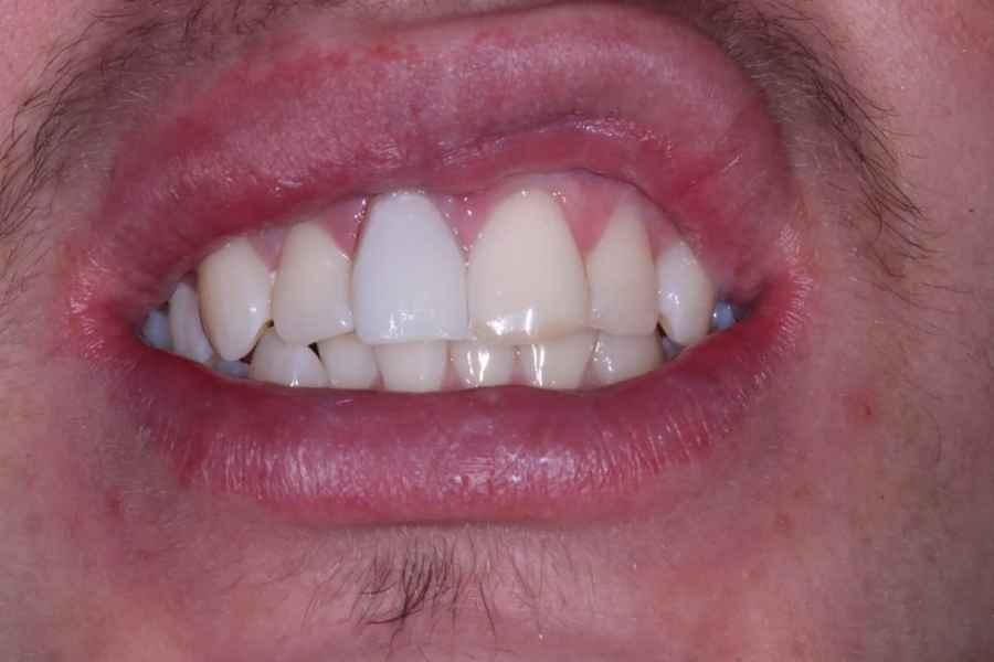 Pre Whiting Cosmetic Dentistry Viva Dental Studio Essex