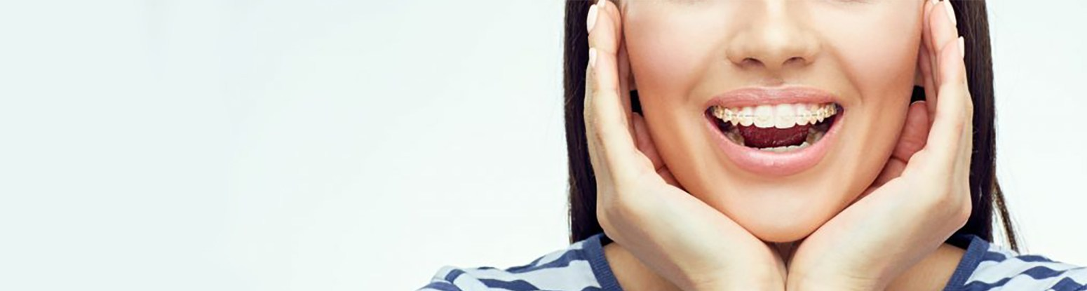 Six Month Smiles Braces Viva Dental Studio Essex