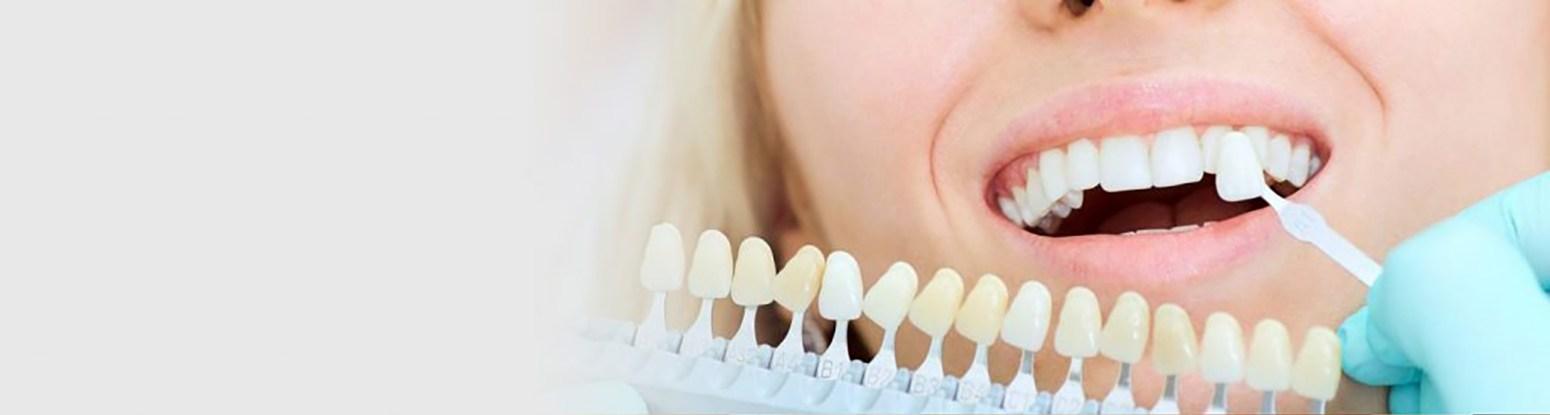 Teeth Whitening Viva Dental Studio Essex