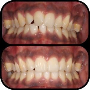 Upper and Lower Braces Viva Dental Studio Essex
