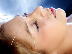 Headaches treated with Acupuncture