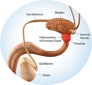 Prostate Gland Disorders