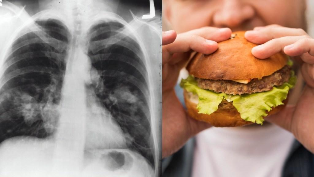 hábitos que dañan los pulmones