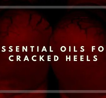 Essential Oils for Cracked Heels - Vivorific Health