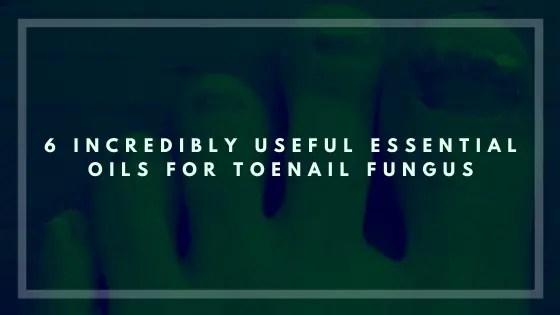 6 Incredibly Useful Essential Oils for Toenail Fungus-Vivorific Health
