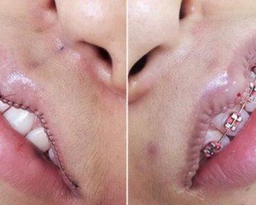 lipsurgery-759x500-e1493524165438