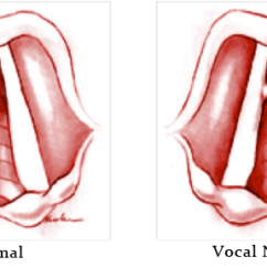 Thyroid And Larynx Anatomy Diagram Cat 5 Wiring Wall Socket Vocal Cord Nodules Diagnosis & Treatment | Los Angeles Voice Doctor