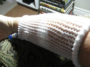 my arm with an IV in it, somewhat covered up by a netting sleeve
