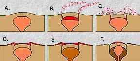 Resurgent calderas. From http://www.geology.sdsu.edu/how_volcanoes_work/Calderas.html
