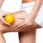 Operación bikini: ¡Adiós Celulitis!