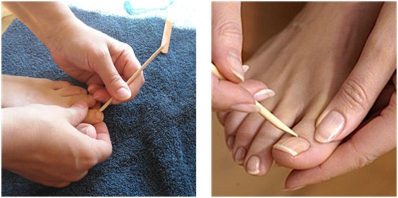Repousser les cuticules des ongles de pieds