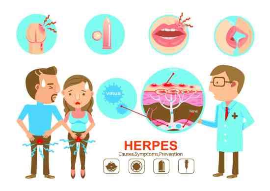 hsvdetox-herpes-genital-Jean-Marc-Fraiche-VousEtesUnique.com