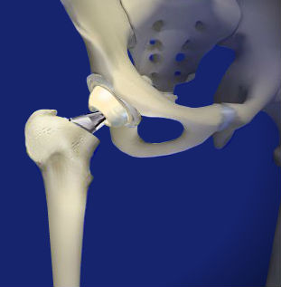 Anterior Approach to Total Hip Replacement