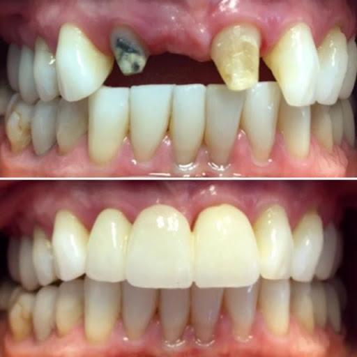 Dental Bridge Front Teeth Before & After [ Images & Video ]