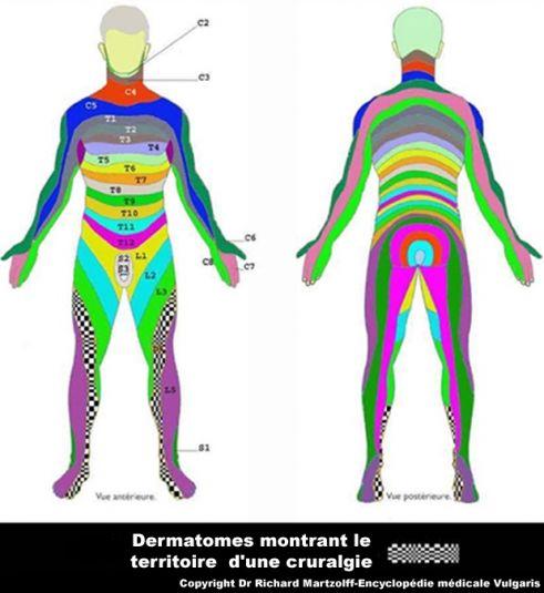 Image Photo Dermatome De La Cruralgie Neurologie