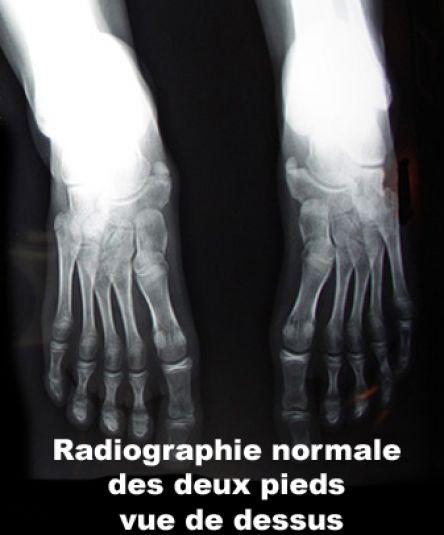 Image Photo Pieds Radiographie Normale Vue De Dessus