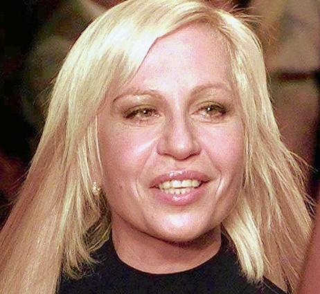 Worst Cases Of Botox Ever
