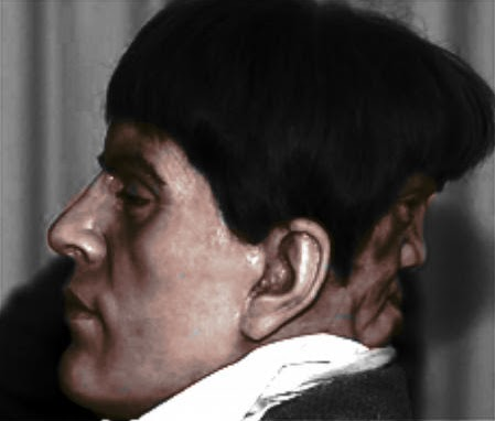 two faced man Edward Mordake 1 Man With 2 Faces   Edward Mordake Pictures Seen on www.VyperLook.com