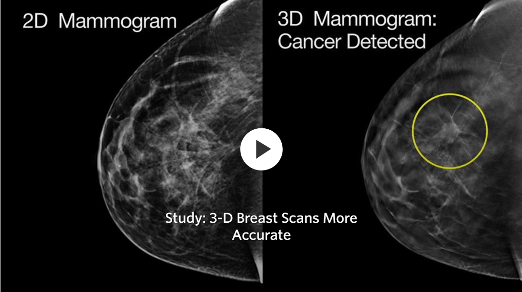 Diagram Of A Hospital 3d Scans More Accurate Than Regular Mammograms