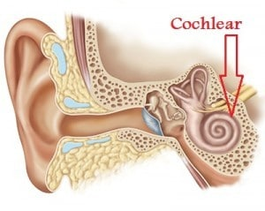 Cochlear-300x239