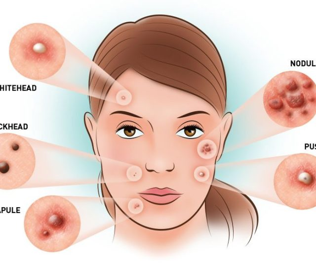 Acne Is A Chronic Frustrating Condition But Very Treatable Skin Disorder Acne Treatment Can Be Successful With The Right Combination Of Topical And