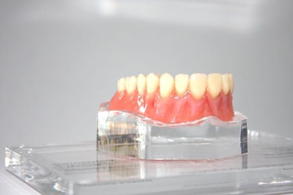 Reinigung von Zahnersatz