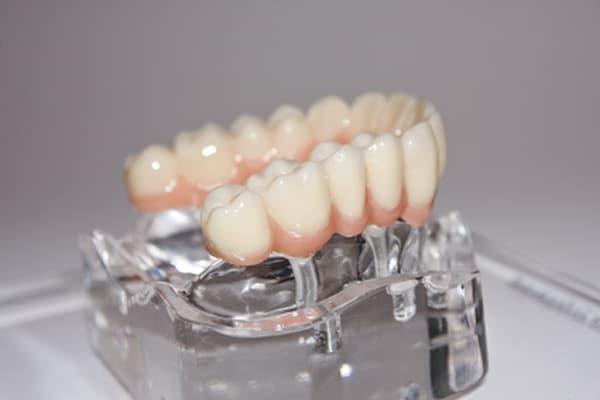 Regelmässige Kontrolle von Zahnersatz