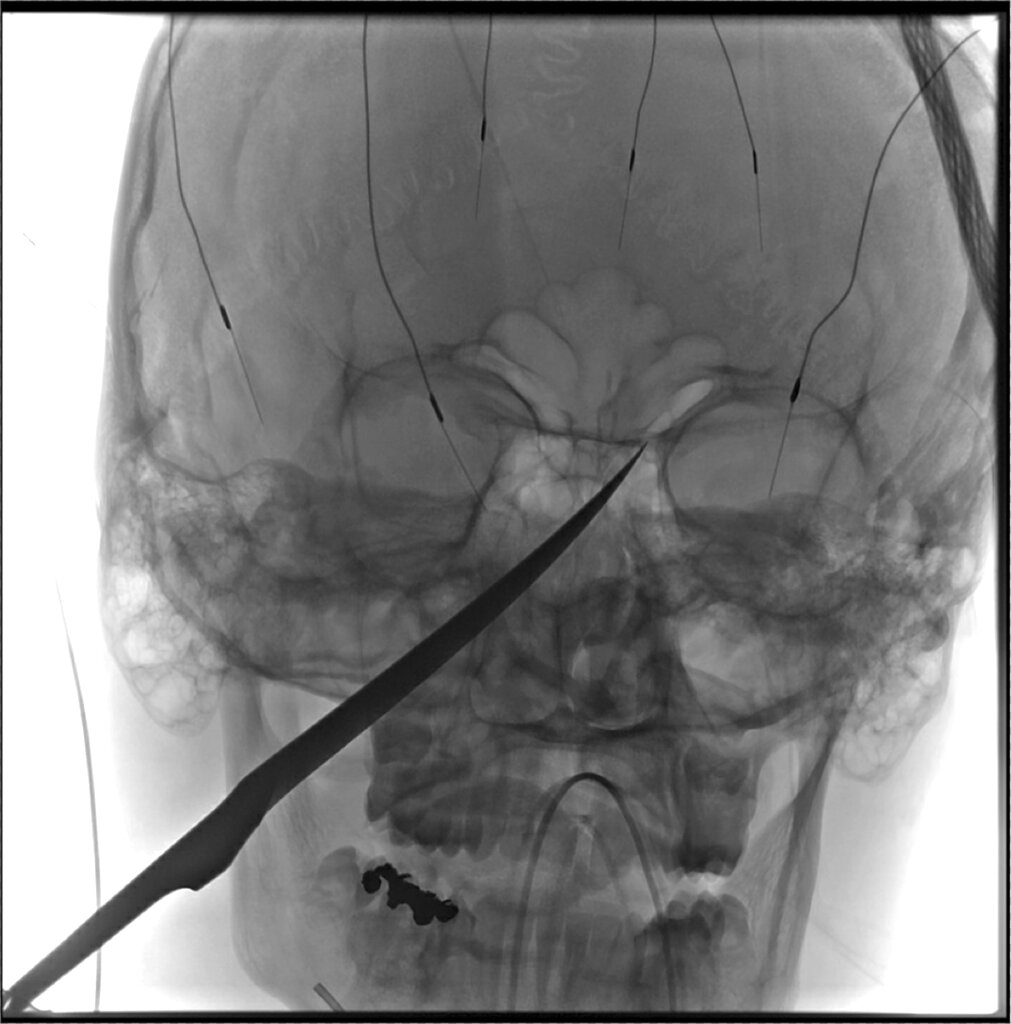 X-ray of impaled face