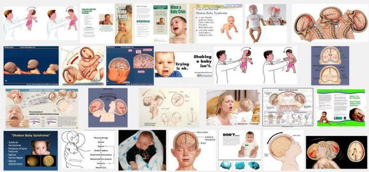 SBS shaken baby syndrom dure plaatjes