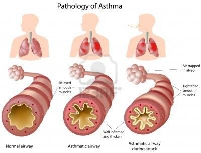 anatomie-van-astma