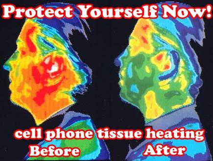 Warmte-opnames van het hoofd, vóór en ná het bellen met een mobiele telefoon, tonen de duidelijke verschillen in de temperatuur van het hersen- en huidweefsel.