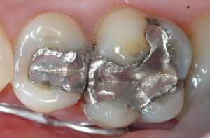 Grote plakken amalgaan, een metaalsamensmelting van metalen in vooral het hoofdbestanddeel kwik