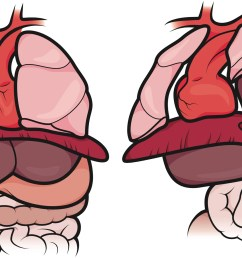 the organs in a healthy fetus vs the organs in a fetus with cdh in a normal newborn the diaphragm protects the lungs enabling them to develop fully so  [ 2000 x 1142 Pixel ]
