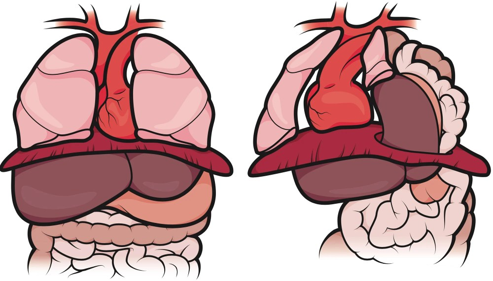 medium resolution of the organs in a healthy fetus vs the organs in a fetus with cdh in a normal newborn the diaphragm protects the lungs enabling them to develop fully so