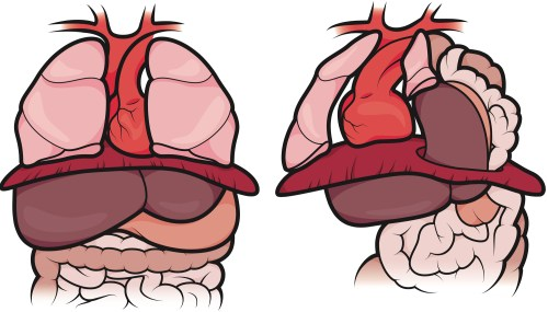 small resolution of the organs in a healthy fetus vs the organs in a fetus with cdh in a normal newborn the diaphragm protects the lungs enabling them to develop fully so