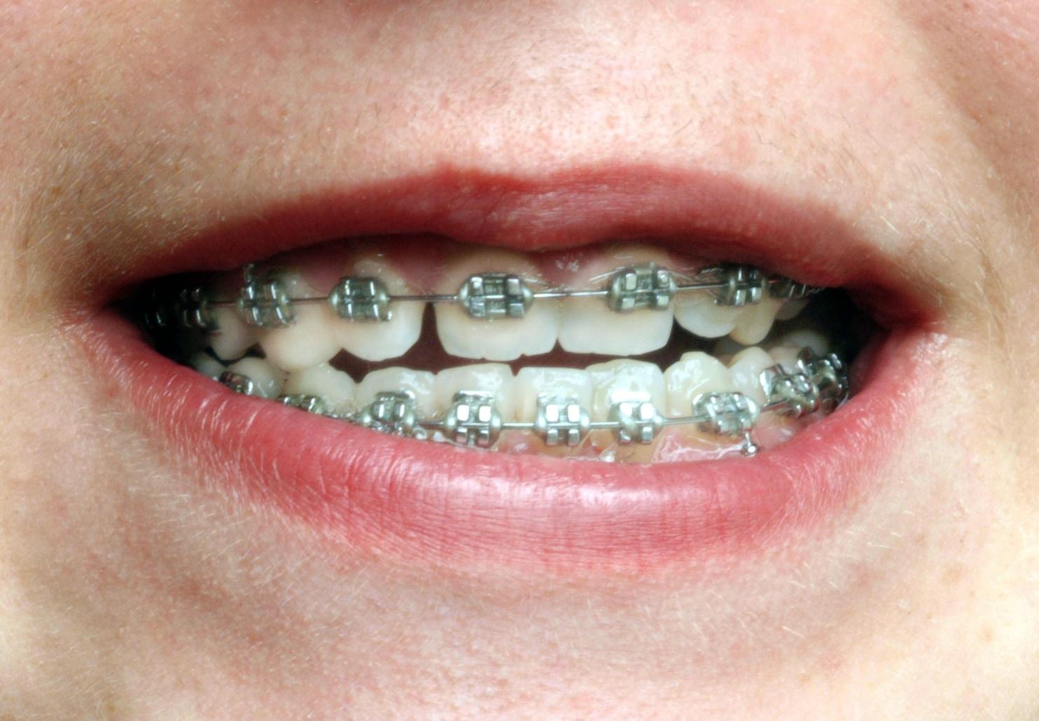 How To Make Fake Braces Teeth - Year of Clean Water