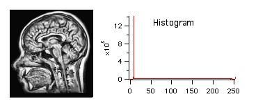 Histogram Modification