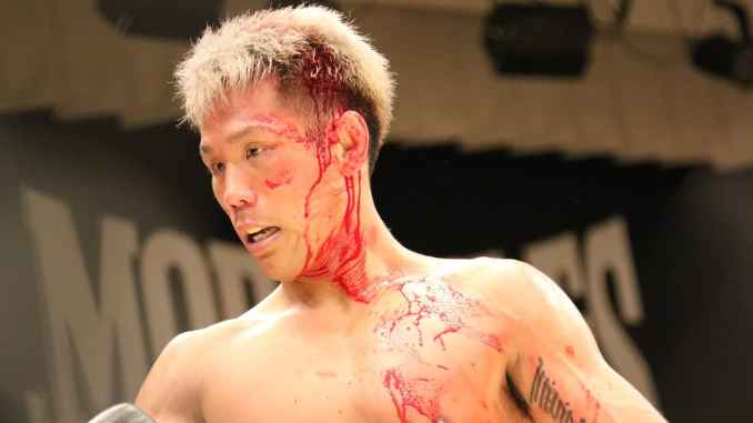 Boxing vs MMA – How Often & Badly Will You Get Injured?