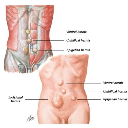 Abdominal Wall Hernia