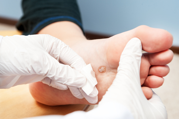 therapist treating diabetic foot