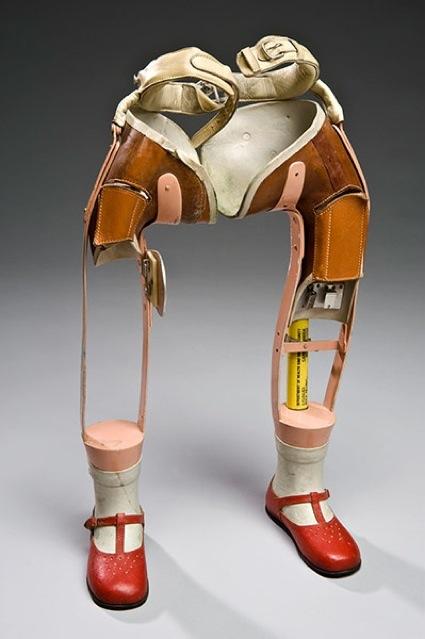 0Lower-limb-prostheses-Roe-006.jpg