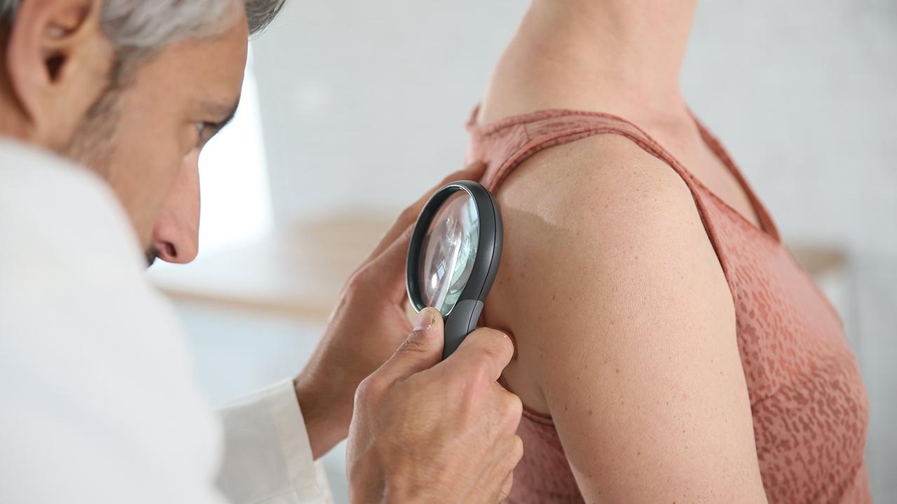 doctor-checking-skin-cancer_1525280638112_366293_ver1_20180503055301-159532