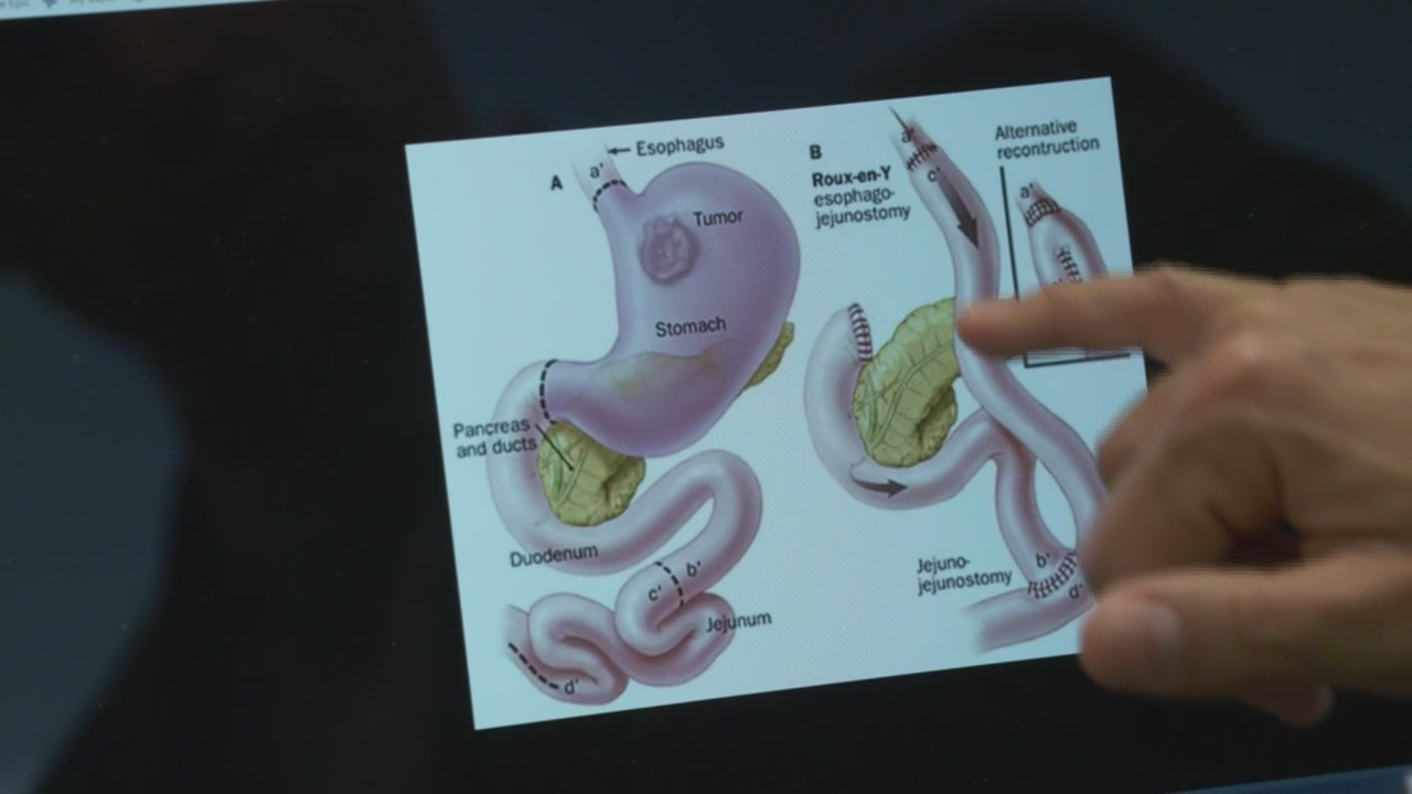 Healthwatch: Fixing Botched Bariatric Surgery