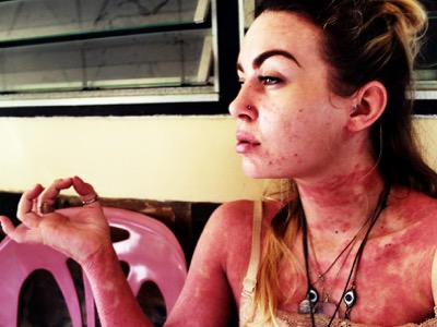 Meet the woman facing psoriasis head on | Challenging body image perceptions (F)
