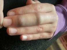 Jaydan-Finger1