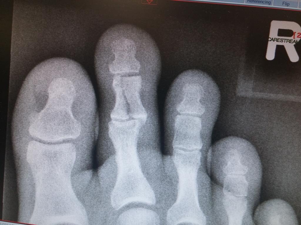 Broken Index Toe – Karate Injury