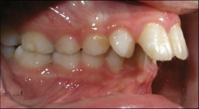 Treatment Plans - Overbites - Teeth | Webb Orthodontics