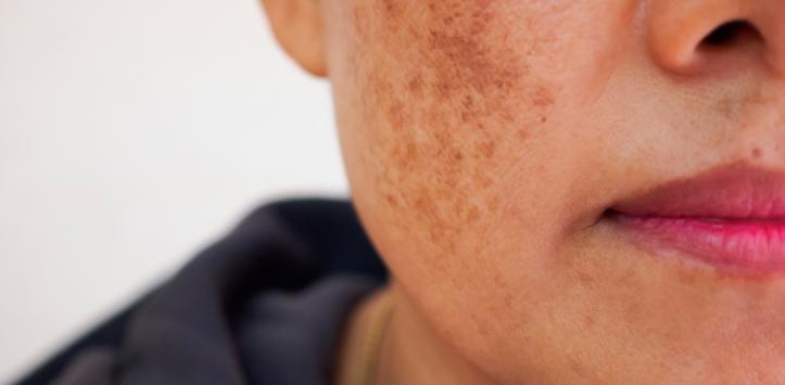 Resultado de imagen de foto tratamiento de melasma en la piel facial