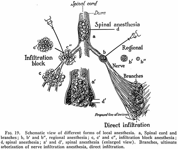 DIAGRAM :: Schematic View of Different Forms of Local