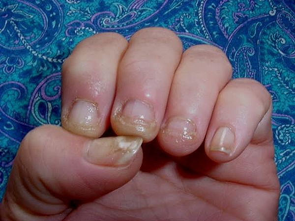 Recovery Of Fungal Nail Infection